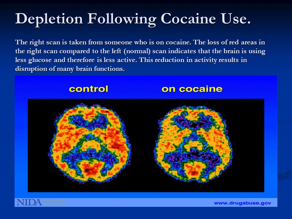 Depletion Following Cocaine Use