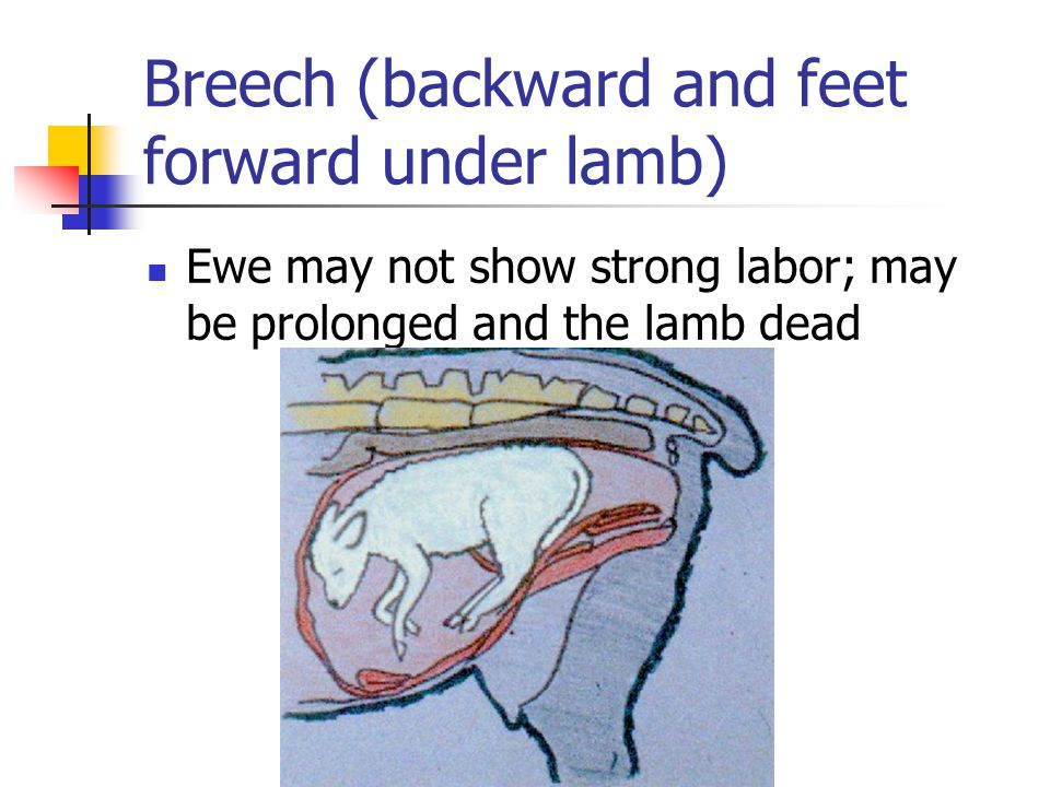 Breech (backward and feet forward under lamb)