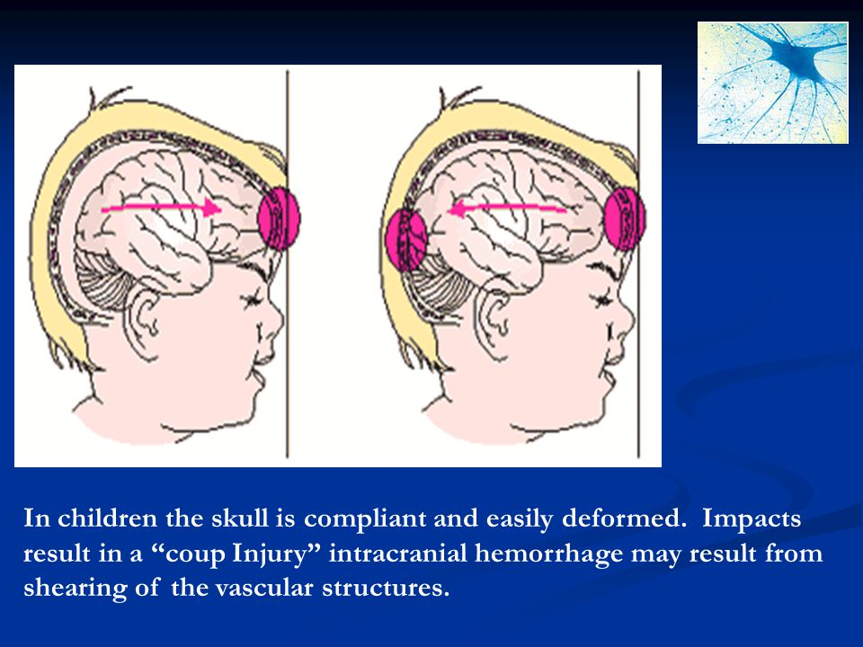 In children the skull is compliant and easily deformed. Impacts