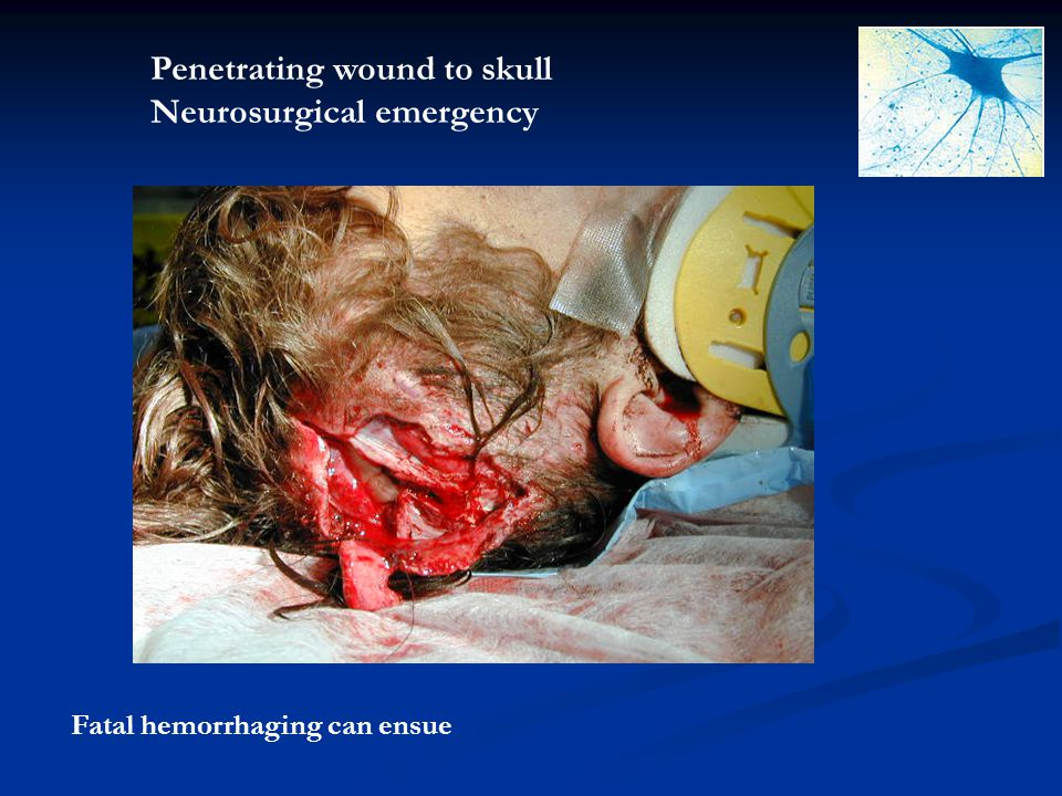 Penetrating wound to skull Neurosurgical emergency