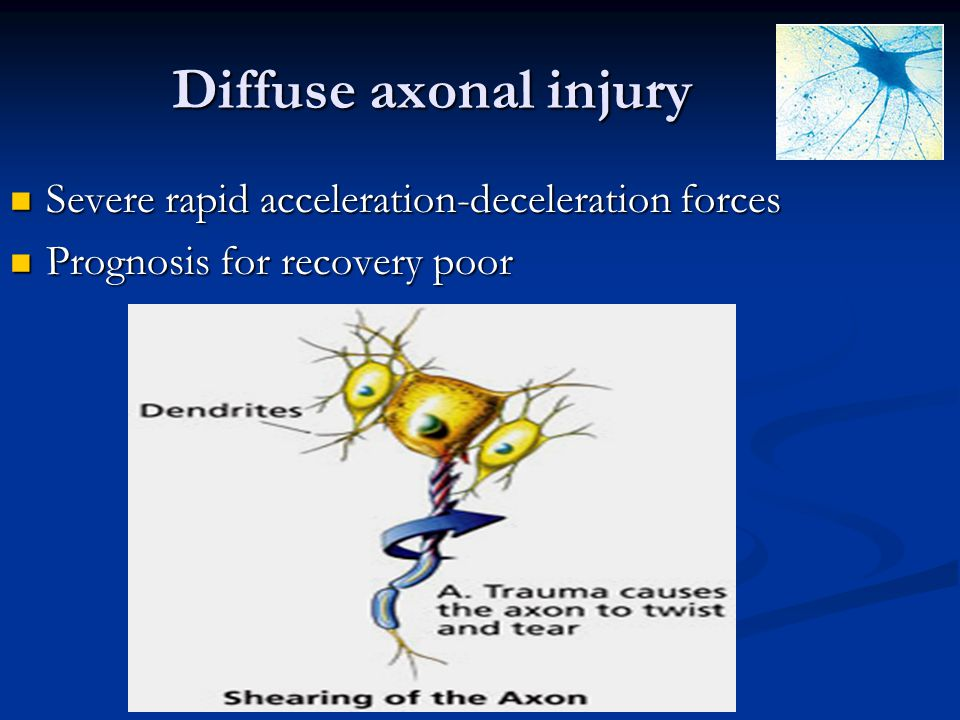 Diffuse axonal injury Severe rapid acceleration-deceleration forces