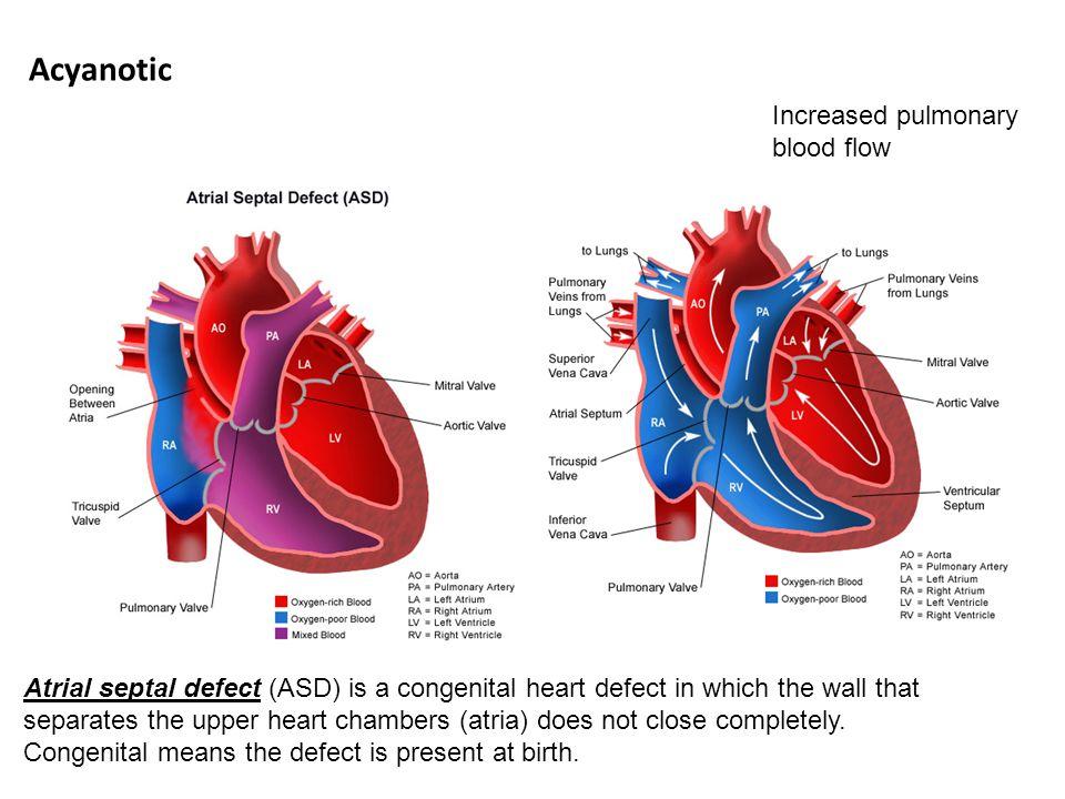 Acyanotic Increased pulmonary blood flow
