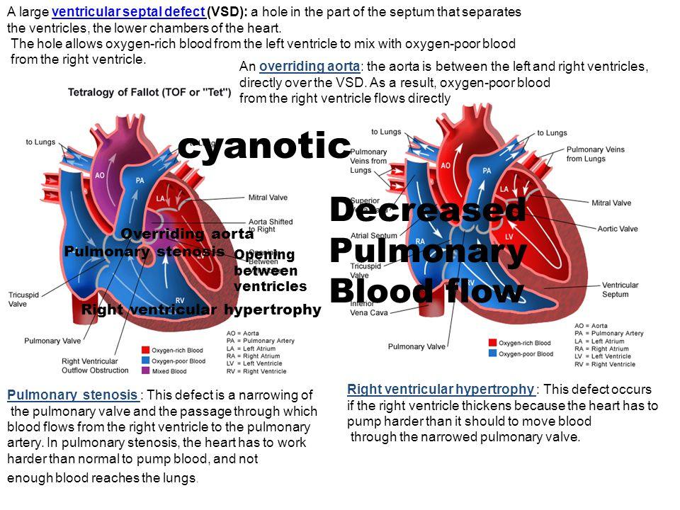 cyanotic Decreased Pulmonary Blood flow Overriding aorta