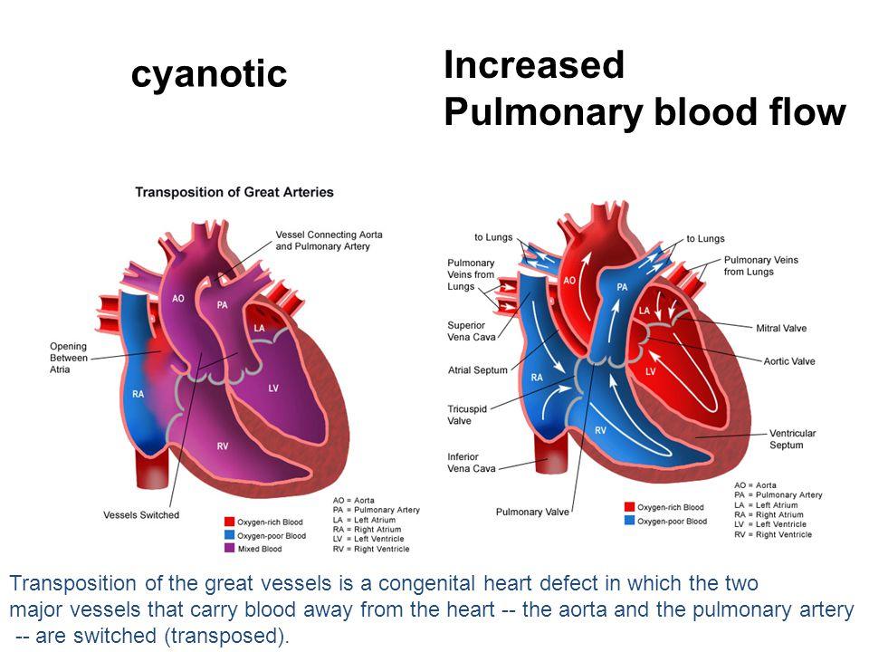 Increased cyanotic Pulmonary blood flow