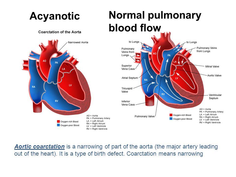 Normal pulmonary Acyanotic blood flow