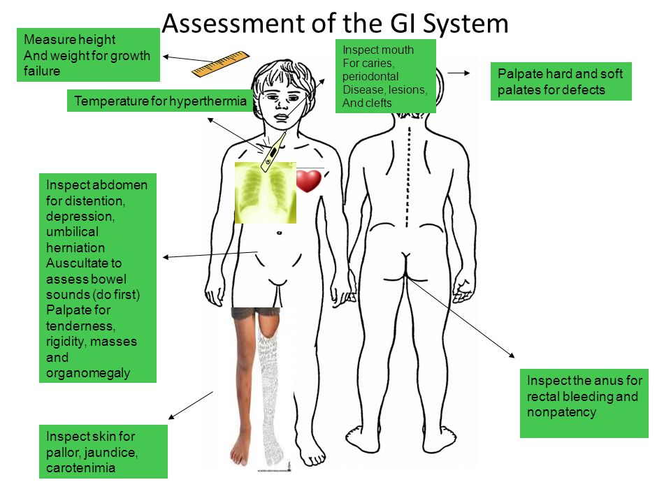 Assessment of the GI System