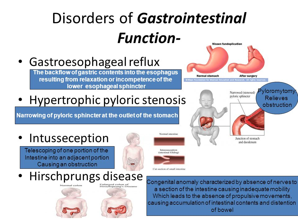 Disorders of Gastrointestinal Function-
