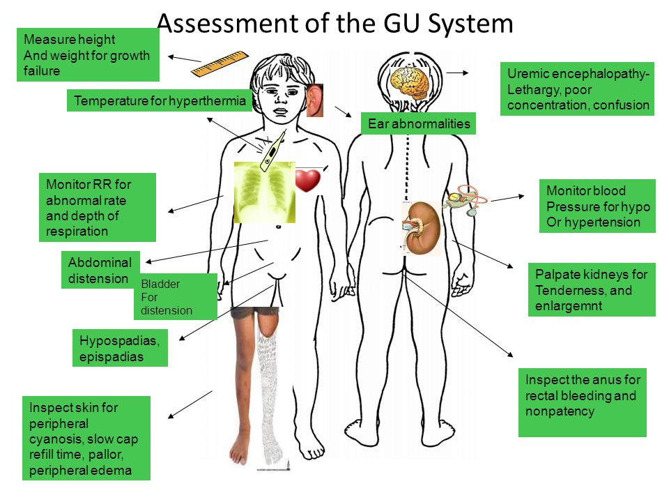 Assessment of the GU System