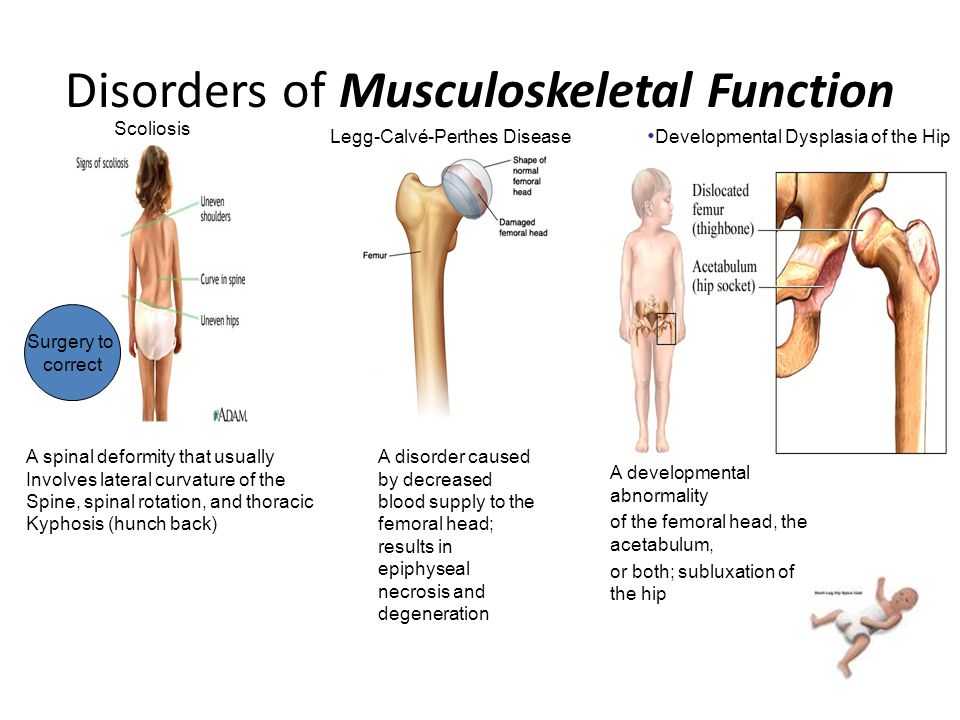 Disorders of Musculoskeletal Function