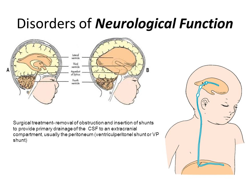 Disorders of Neurological Function