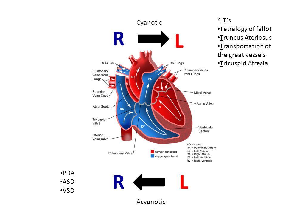 R L R L 4 T's Cyanotic Tetralogy of fallot Truncus Ateriosus