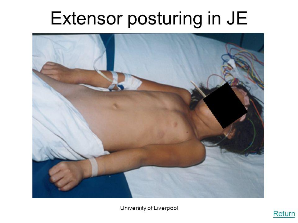 Extensor posturing in JE