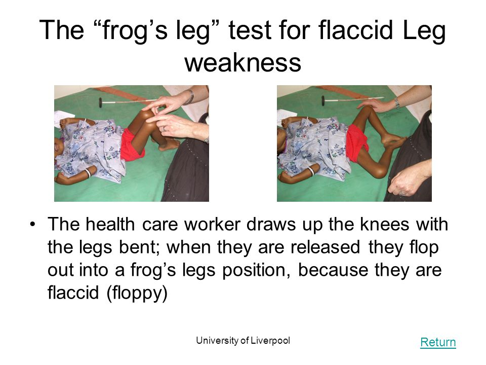 The frog's leg test for flaccid Leg weakness