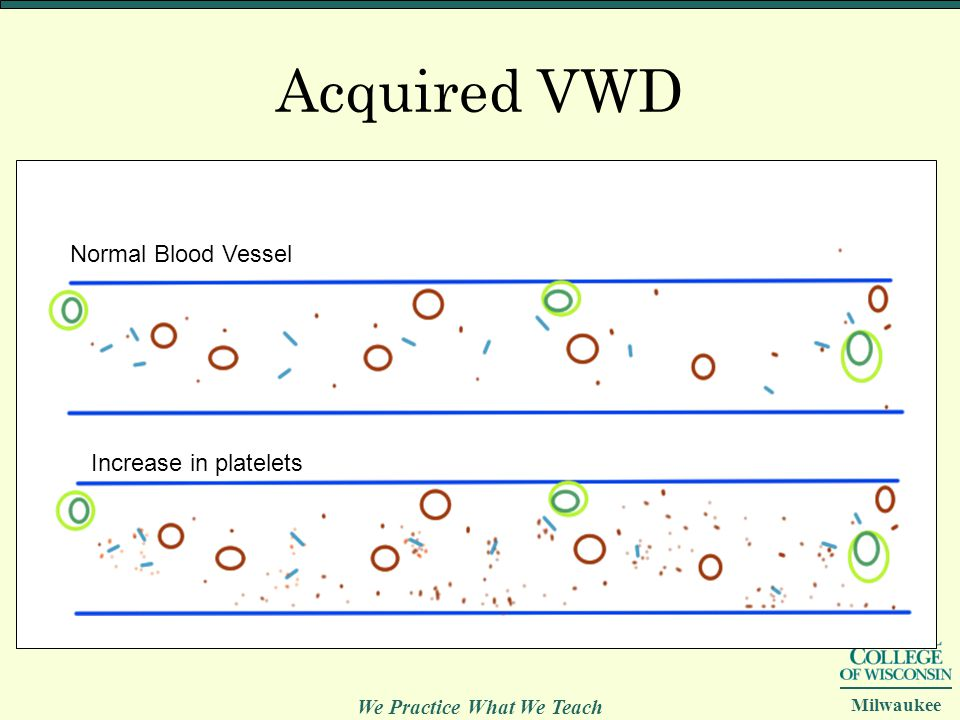 Acquired VWD Normal Blood Vessel Increase in platelets