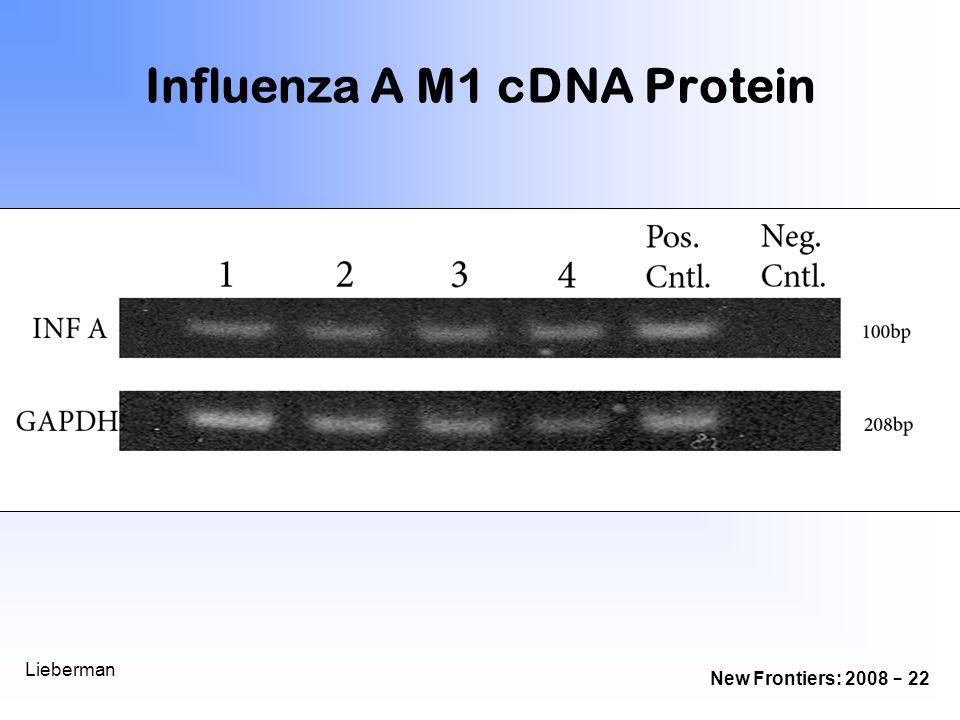 Influenza A M1 cDNA Protein