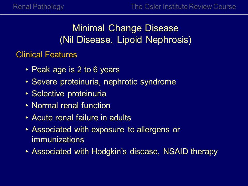 Minimal Change Disease (Nil Disease, Lipoid Nephrosis)
