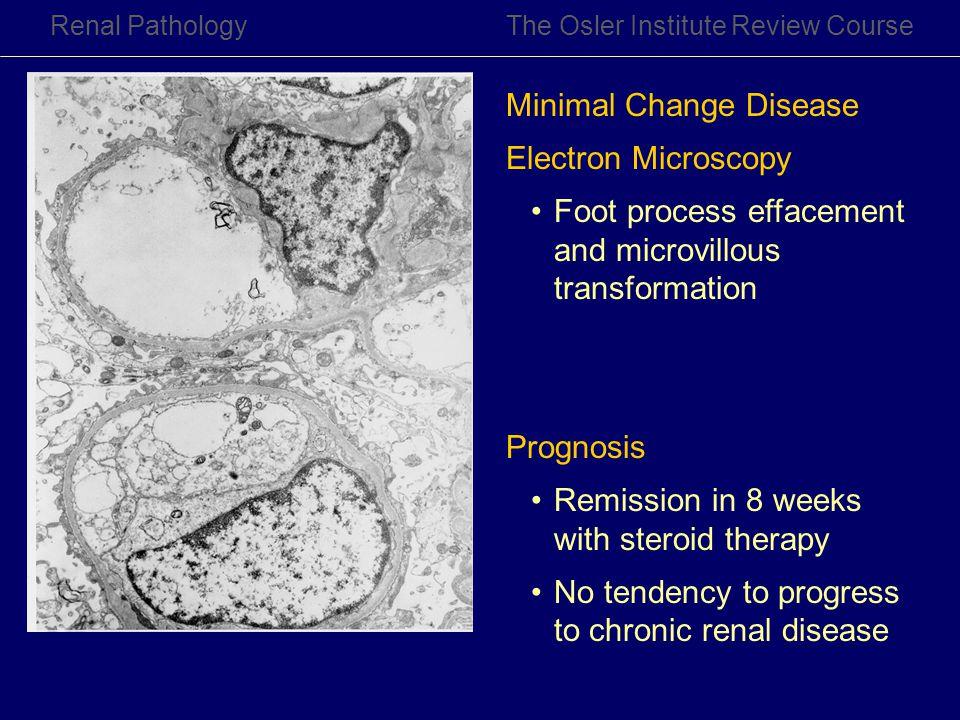 Minimal Change Disease Electron Microscopy
