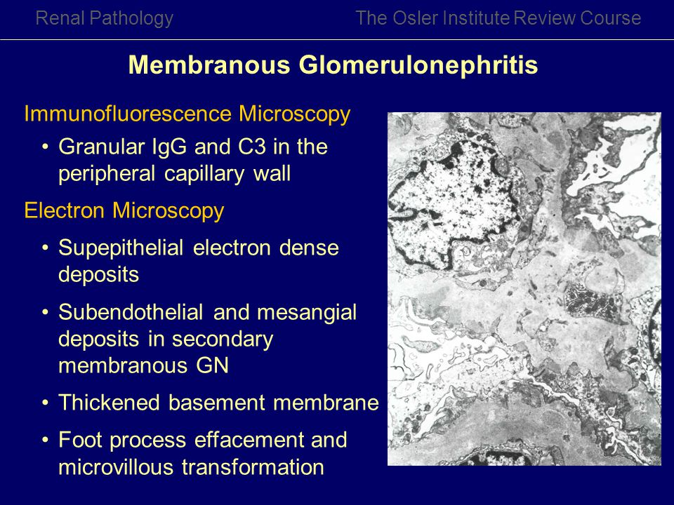 Membranous Glomerulonephritis