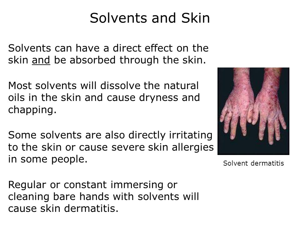 Solvents and Skin Solvents can have a direct effect on the skin and be absorbed through the skin.