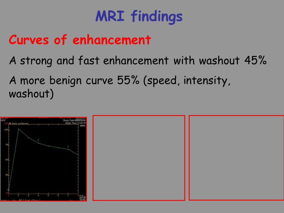 MRI findings Curves of enhancement