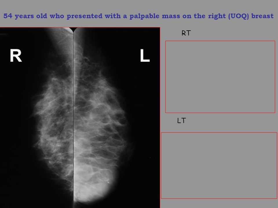 54 years old who presented with a palpable mass on the right (UOQ) breast