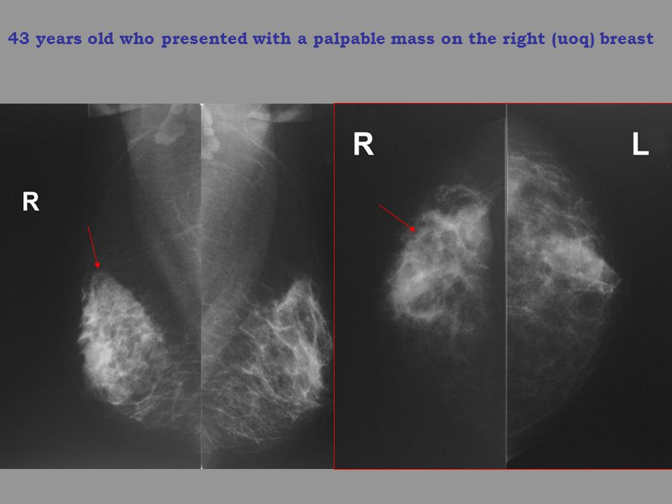 43 years old who presented with a palpable mass on the right (uoq) breast