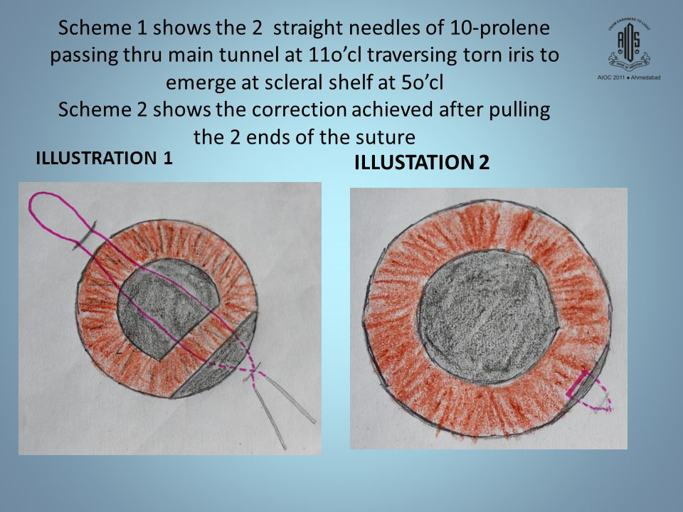 Scheme 1 shows the 2 straight needles of 10-prolene passing thru main tunnel at 11o'cl traversing torn iris to emerge at scleral shelf at 5o'cl Scheme 2 shows the correction achieved after pulling the 2 ends of the suture