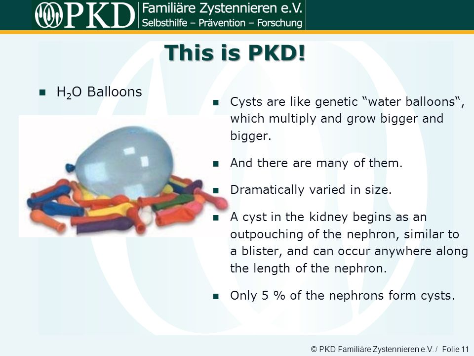 This is PKD! H2O Balloons. Cysts are like genetic water balloons , which multiply and grow bigger and bigger.