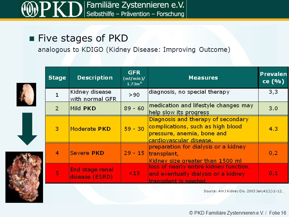 Five stages of PKD analogous to KDIGO (Kidney Disease: Improving Outcome)