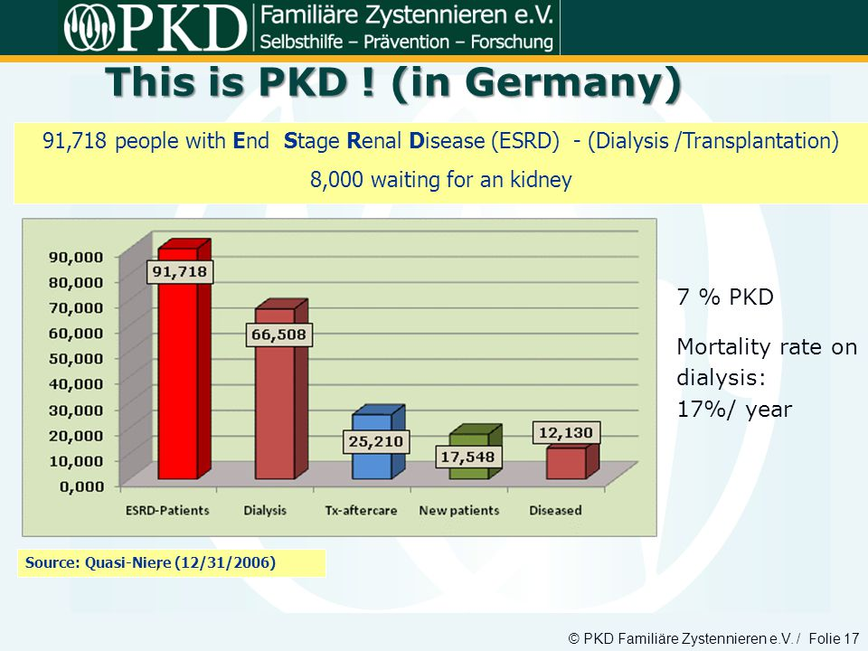 This is PKD ! (in Germany)