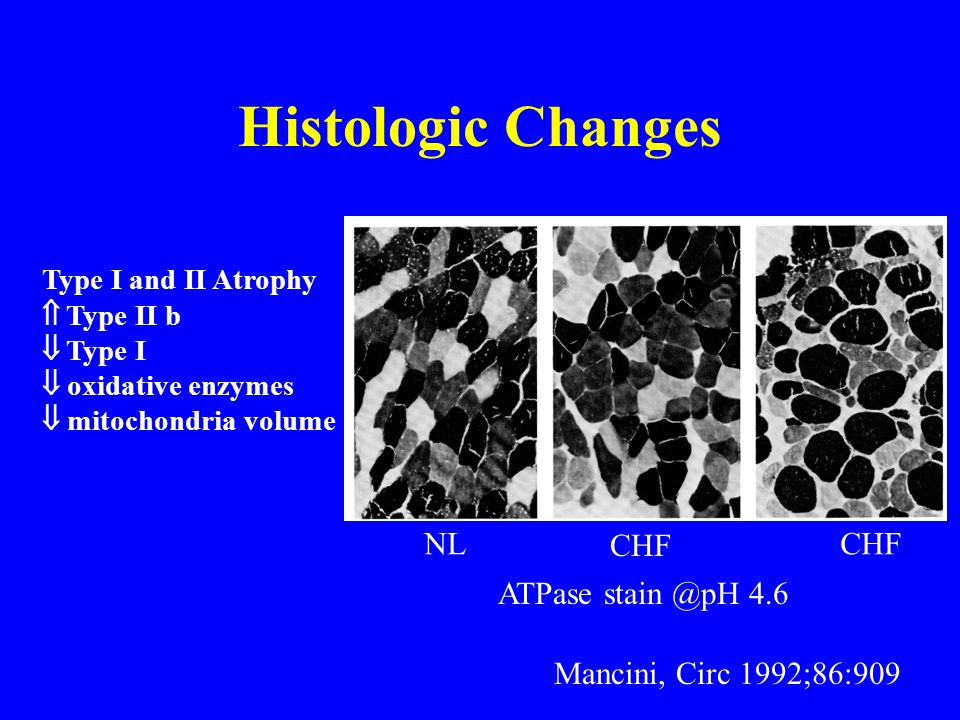 Histologic Changes NL CHF CHF ATPase stain @pH 4.6