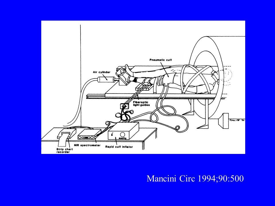 Mancini Circ 1994;90:500