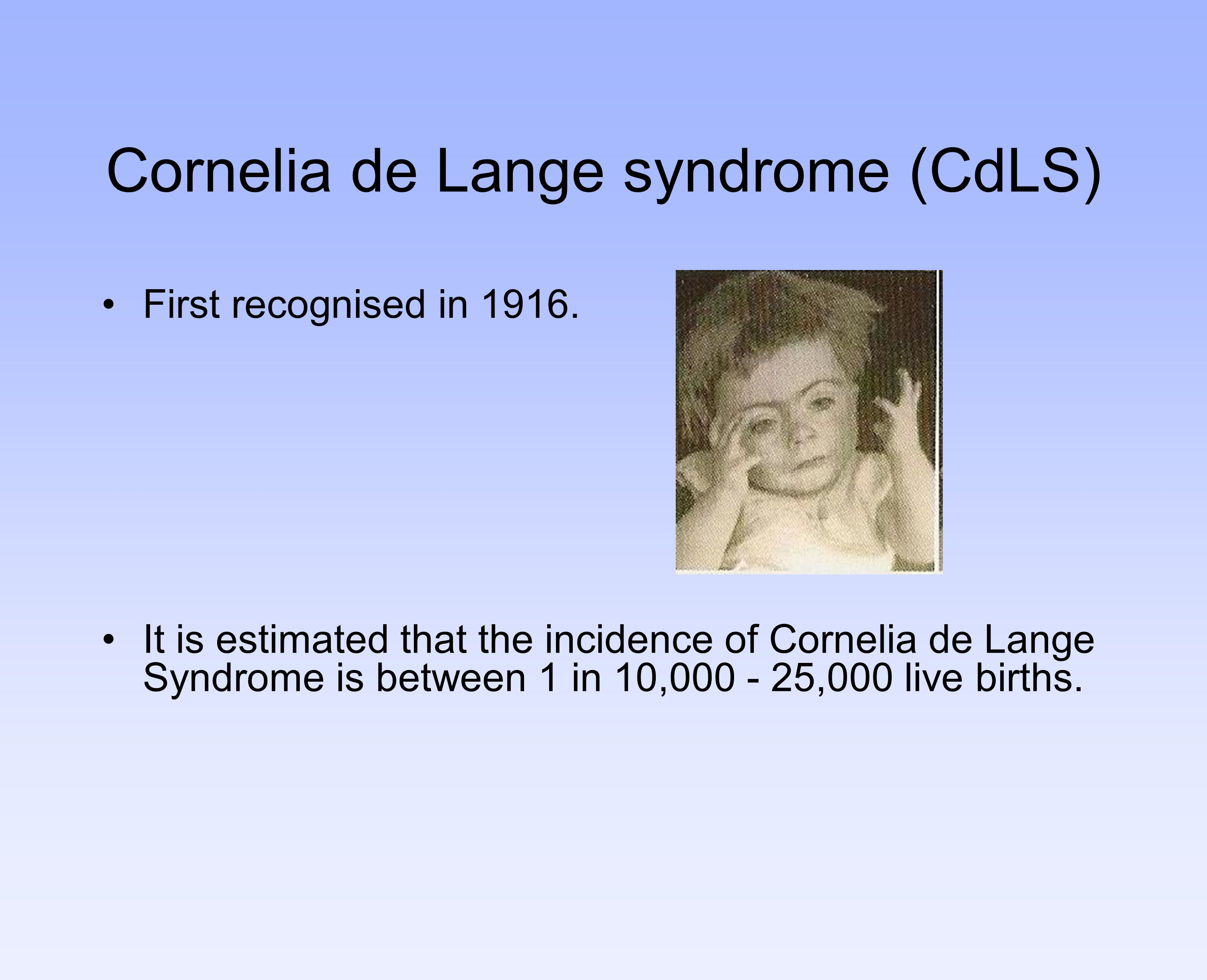 Cornelia de Lange syndrome (CdLS)