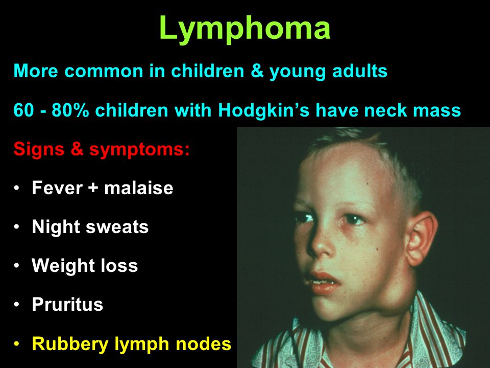Lymphoma More common in children & young adults