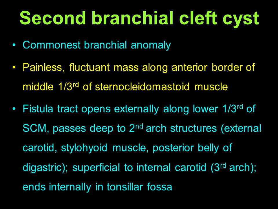 Second branchial cleft cyst