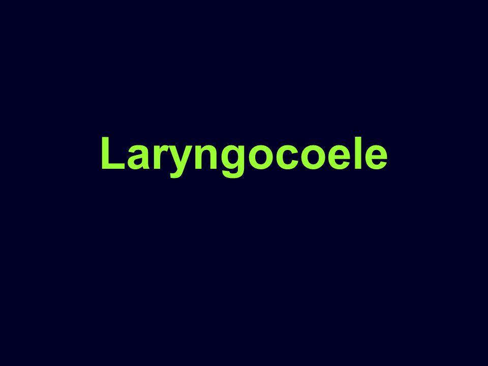 Laryngocoele