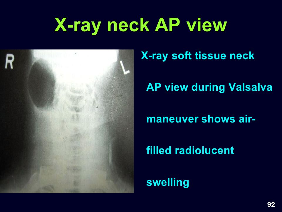 X-ray neck AP view X-ray soft tissue neck AP view during Valsalva maneuver shows air-filled radiolucent swelling.