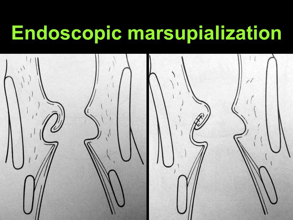 Endoscopic marsupialization