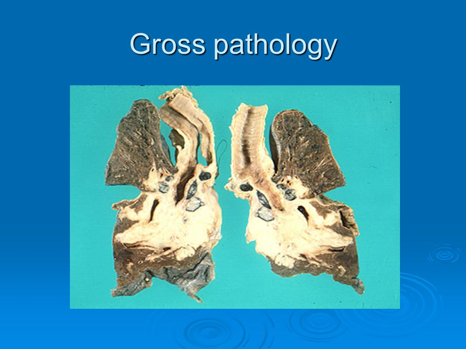 Gross pathology
