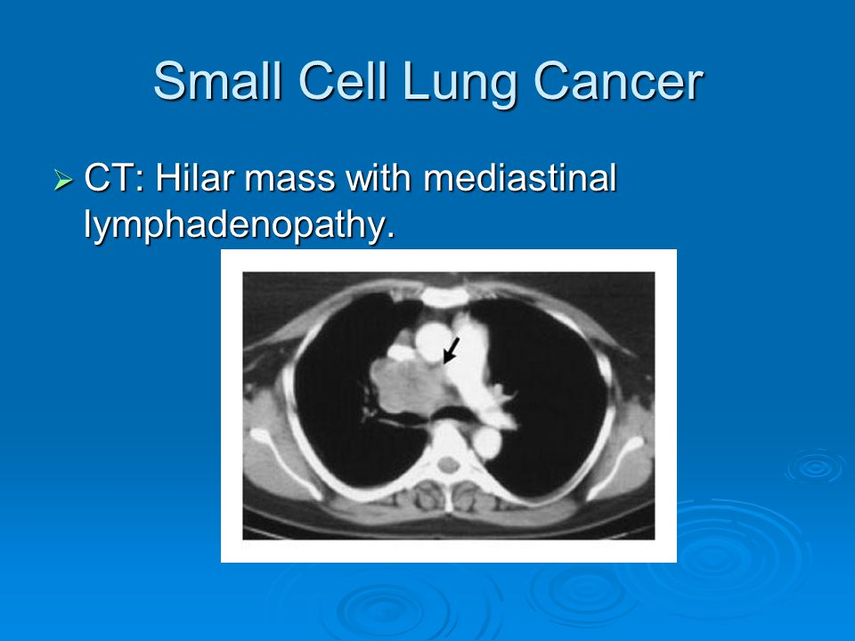 Small Cell Lung Cancer CT: Hilar mass with mediastinal lymphadenopathy.