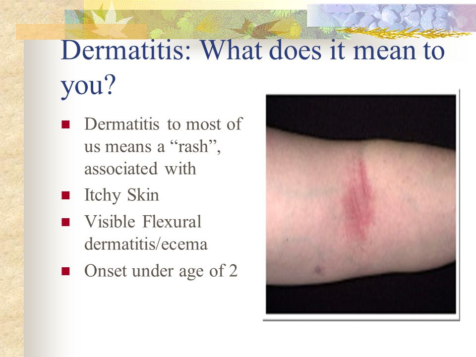 Dermatitis: What does it mean to you