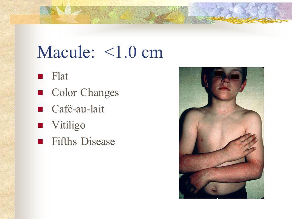 Macule: <1.0 cm Flat Color Changes Café-au-lait Vitiligo
