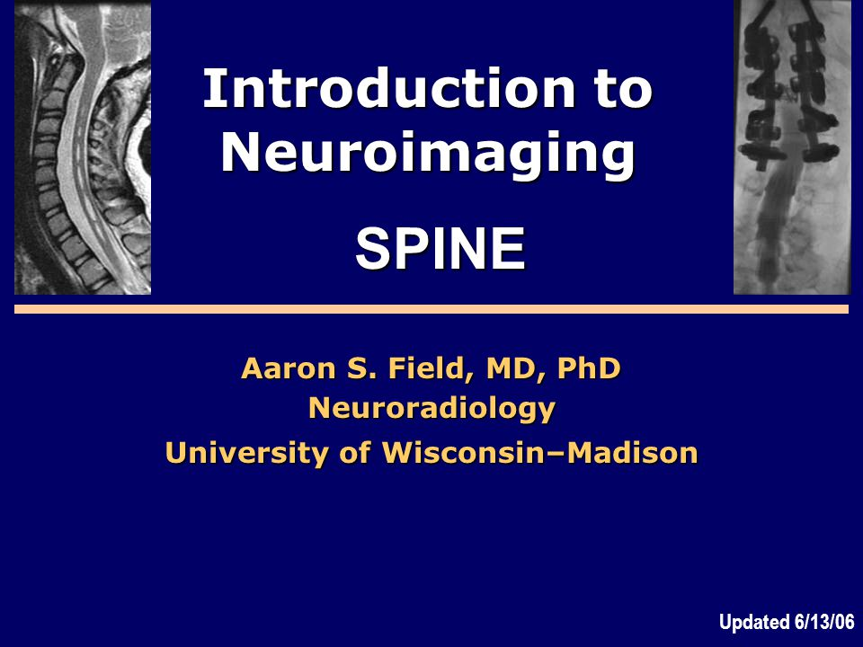 Introduction to Neuroimaging University of Wisconsin–Madison