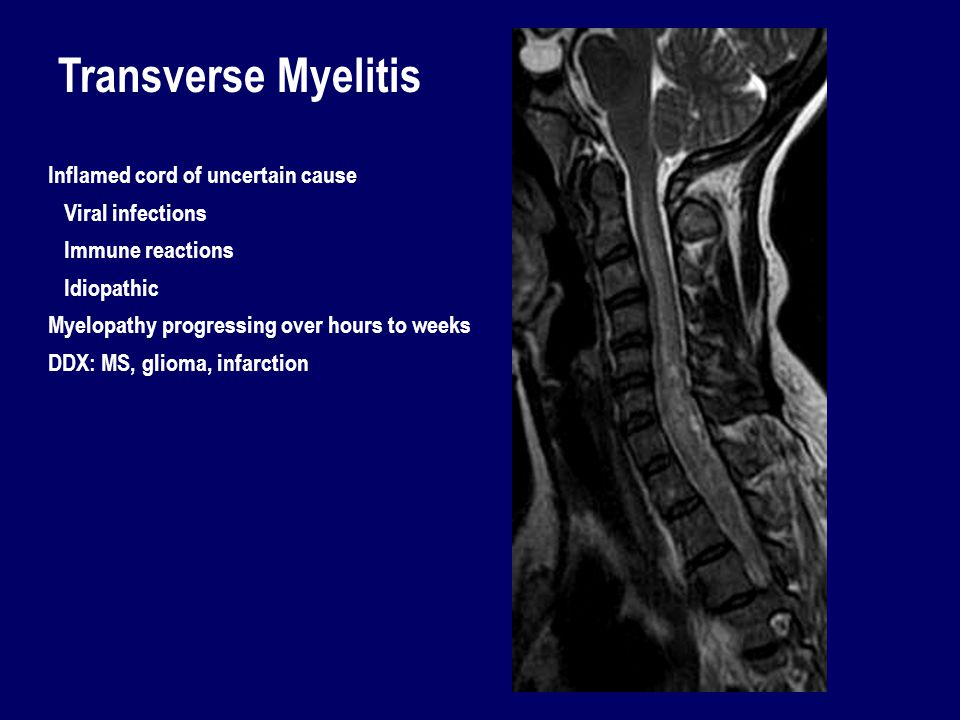 Transverse Myelitis Inflamed cord of uncertain cause Viral infections