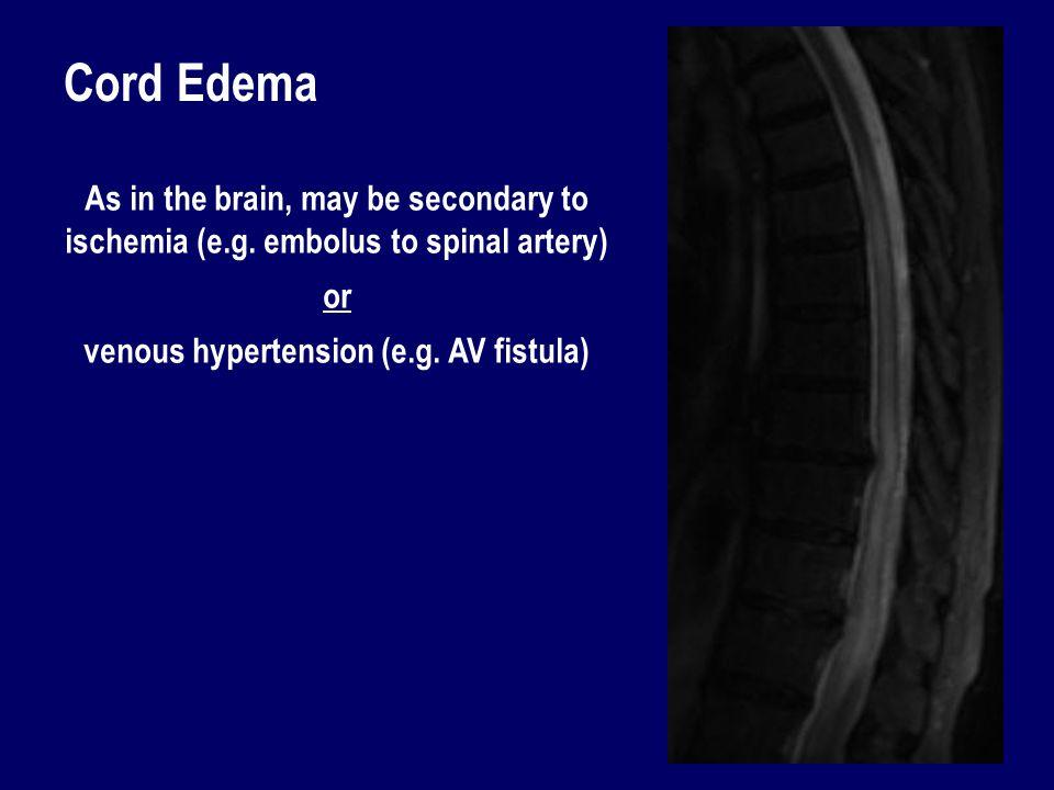 venous hypertension (e.g. AV fistula)