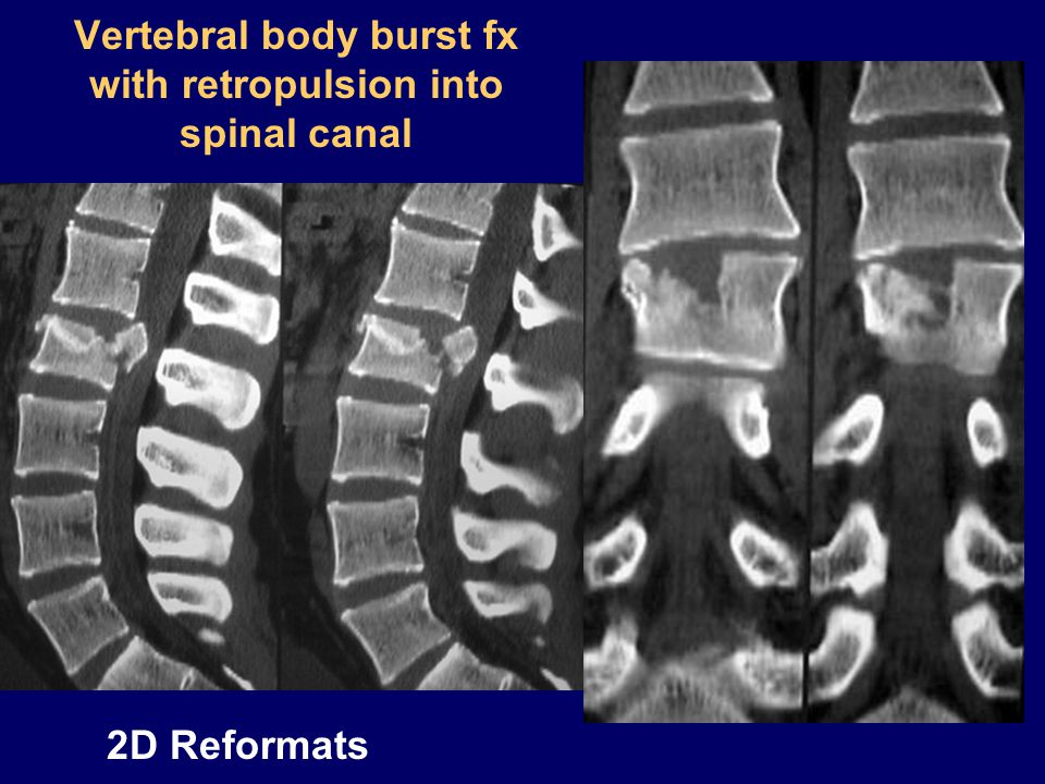 Vertebral body burst fx with retropulsion into spinal canal