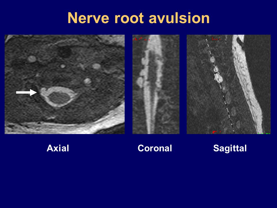 Nerve root avulsion Axial Coronal Sagittal
