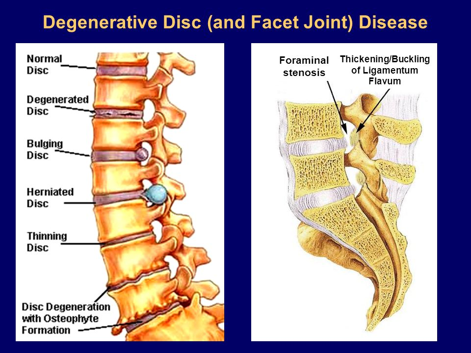 Degenerative Disc (and Facet Joint) Disease