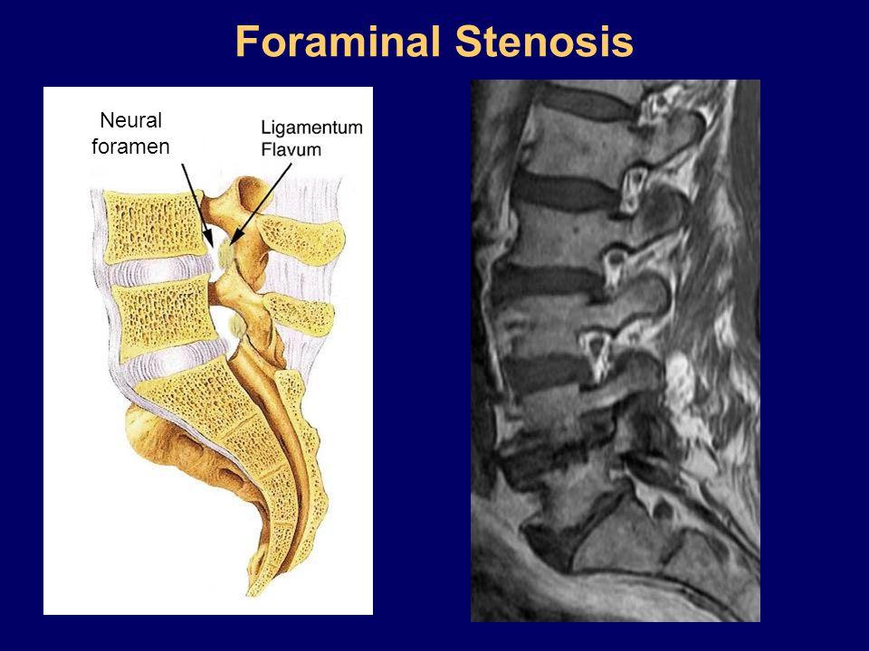 Foraminal Stenosis Neural foramen