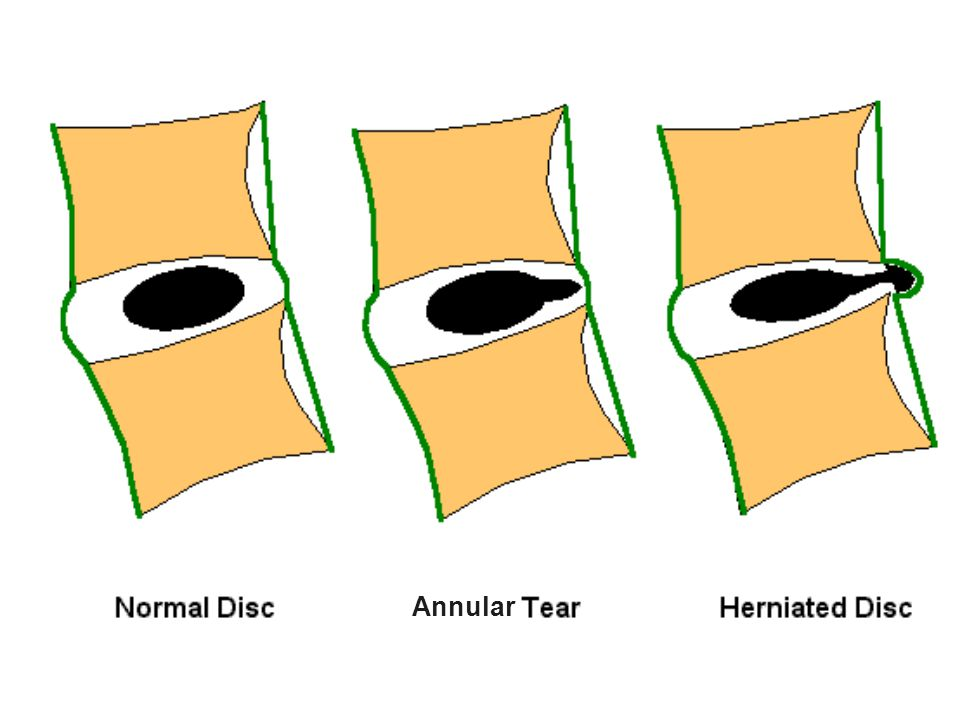 Schematic sagittal anatomical sections showing the differentiating features of an annular tear (radial tear in this case) and a disc herniation. The term tear is used to refer to a localized radial, concentric, or horizontal disruption of the anulus without associated displacement of disc material beyond the limits of the intervertebral disc space. Nuclear material is shown in black, and the annulus (internal and external) corresponds to the white portion of the intervertebral space. The same convention is used in Figures 3, 12, 13, and 14. (Adapted from Milette PC. The proper terminology for reporting lumbar intervertebral disk disorders. AJNR Am J Neurorad 1997;18: ; with permission.)